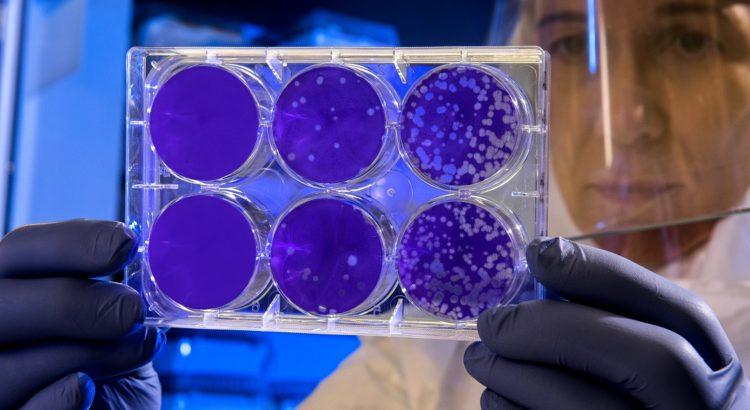 Bakterien und Viren Edelstahl
